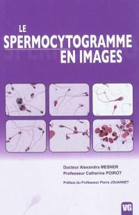 Le spermocytogramme en images